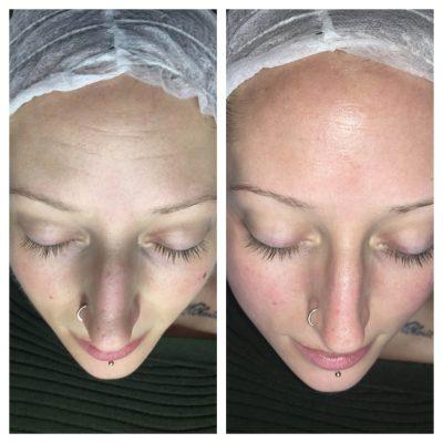 Dermaplane skin rejuvenation